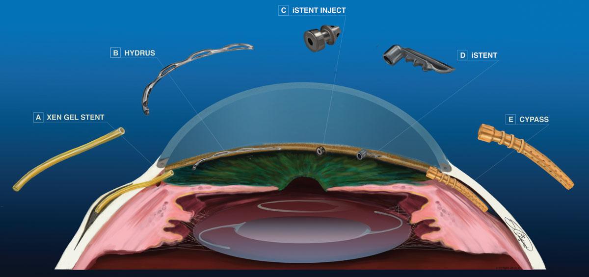 Glaucoma en México – Dr. Gabriel Lazcano Gómez