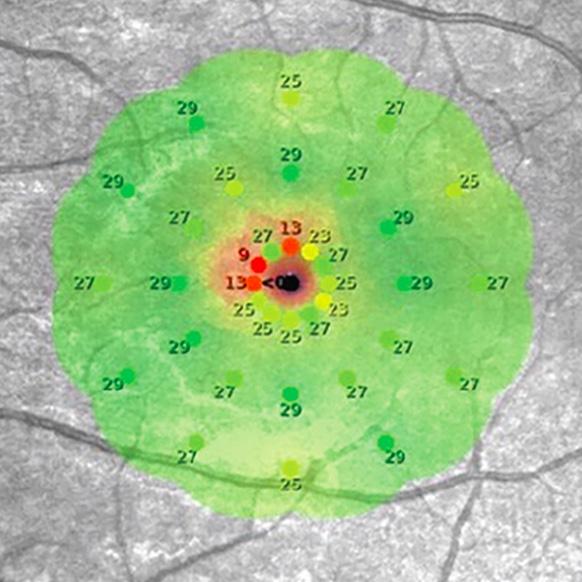 Retinopatía Solar - Microperimetría