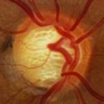 Logo del grupo Glaucoma